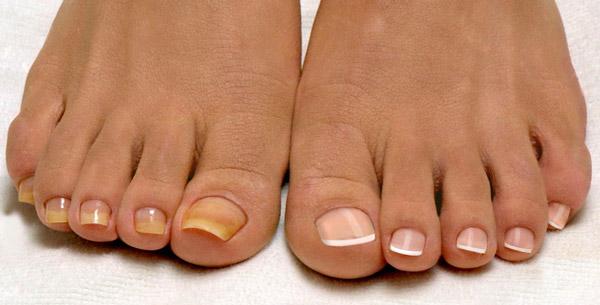 Грибок ногтя на ноге лечение в домашних условиях