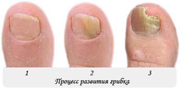 Вросший ноготь на большом пальце ноги хирургическое лечение