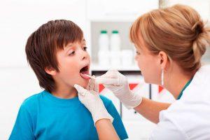 как лечить ангину в домашних условиях быстро у детей