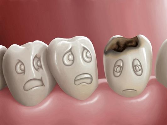 Причины кариеса молочных зубов