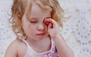 Конъюнктивит у детей: симптомы, лечение в домашних условиях
